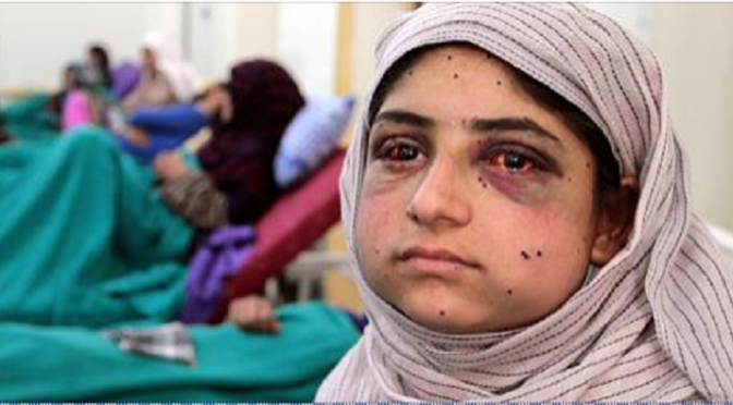 Kashmir: 13-Year Old Ifrah Jan Was Shot In The Face By 'Israeli'-Trained, 'Israeli'-Armed Indian Forces