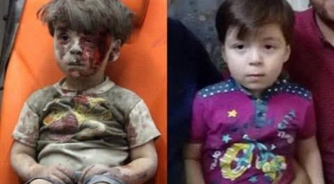 The White Helmets Lied! Omran Daqneesh The Orange Seat Boy Resurfaces And His Whole Family Stands With The Syrian Government!